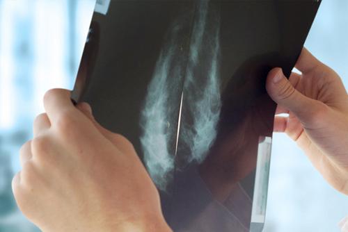 chirurgie-cancerologique