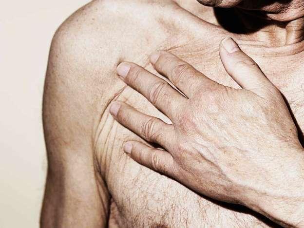 cancer-du-sein-chez-lhomme