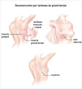 Dr oukacha nadia Reconstruction par lambeau